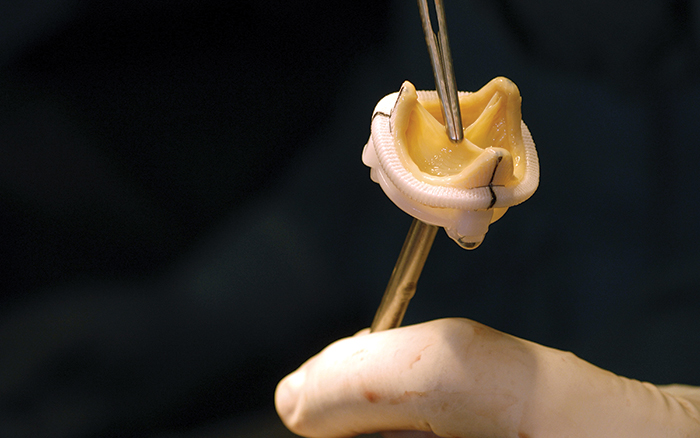 Close up of a replacement heart valve, Yue Yu, Lehigh University